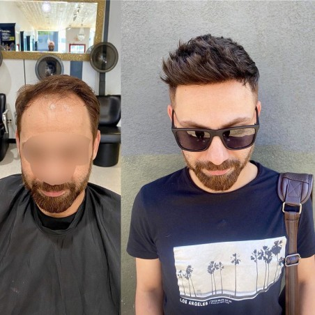 Helios Hair System for Bald Men |Full Swiss Lace Base |Best for Summer