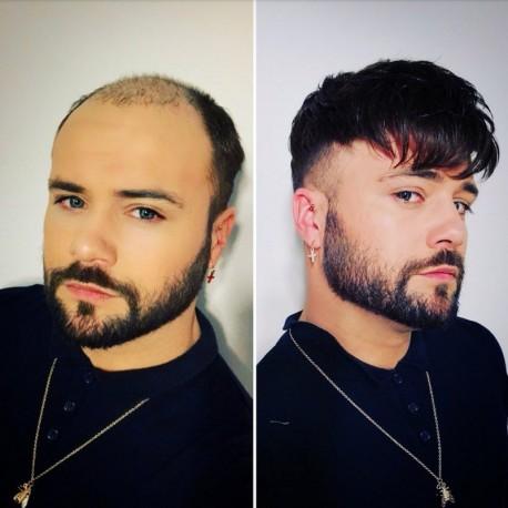 Oceanus Men's Hair System en línea | Encaje Frontal con Piel en la Espalda | Estilo duradero