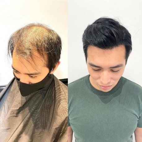 Mirage Toupee for Men | Full Super Thin Skin Base | Celebrities Choice