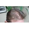 Custom Made Men's Hair System