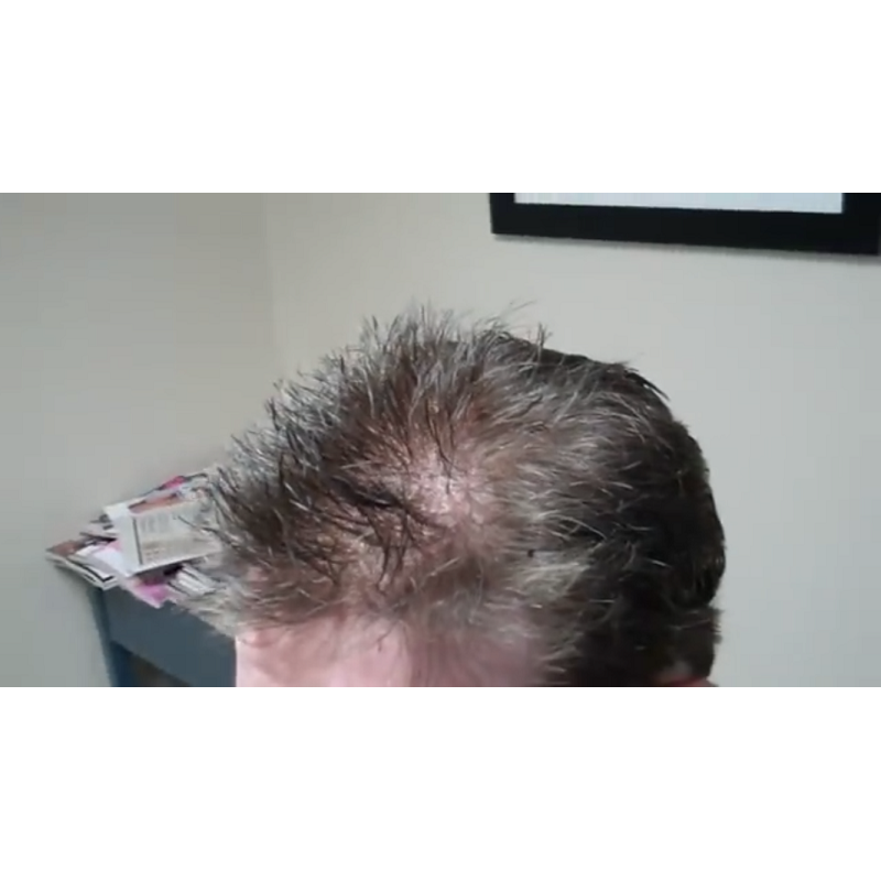 Custom Made Men's Hair System