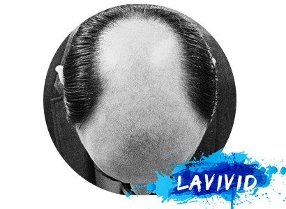 How to Overcome Male Hair Crown Thinning Issue?