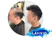 Why Male Pattern Baldness Reddit Information Is So Important?
