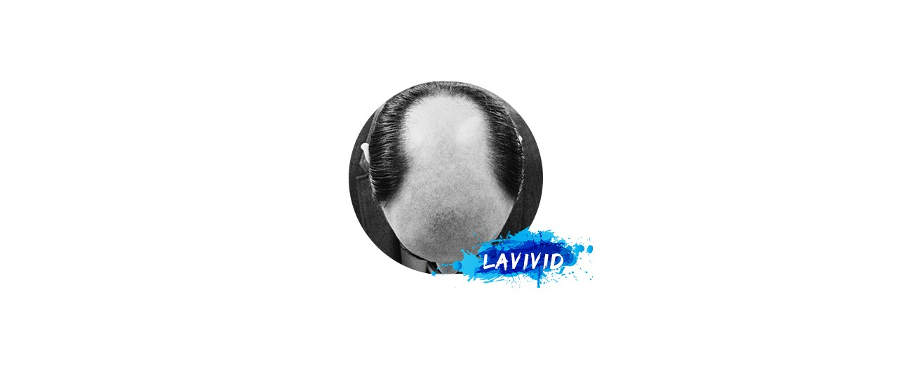 What You Should Know Before You Choose Men's Bald Spot Hair Piece