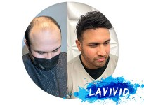 How to Satisfy with the Toupee for Bald Spot?