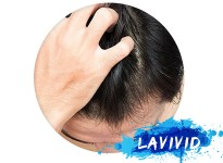 How Can A Man Stop Hair Loss? - Useful Tips Here