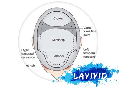 What Makes LaVivid Hair System So Special – Hair Directions