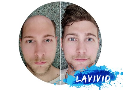 LaVivid Hair Men's Hair System Before and After