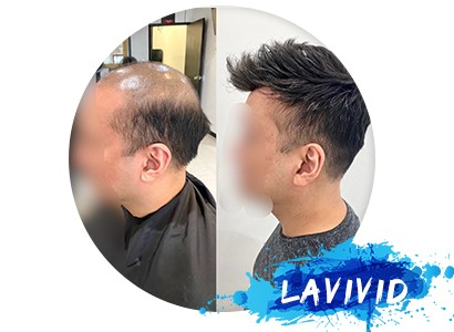 My Experience of Two Hair Systems with LaVivid Hair