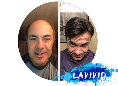Client Review of LaVivid European Hair System