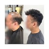 Mirage Toupee for Men | Full Super Thin Skin Base | Celebrities Choice review